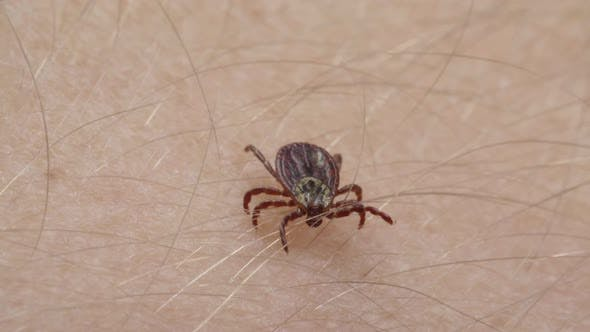 Thumbnail for Blood-sucking Mite Tick Creepes on the Human Skin Through the Hair