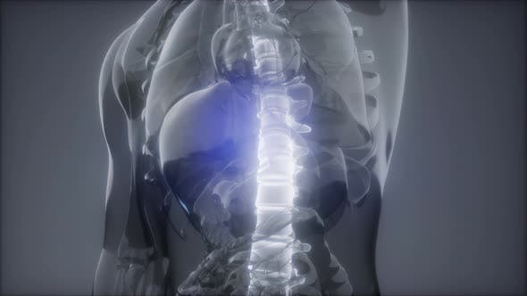 Thumbnail for Backache in Back Bones