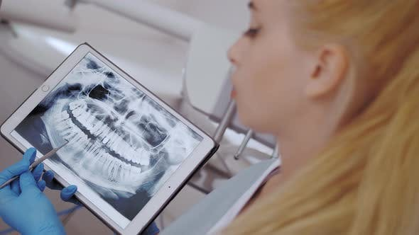 Thumbnail for Dentist and Patient Choosing Treatment in a Consultation with Medical Equipment in the Background