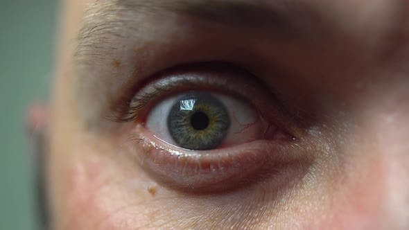4K macro human eye. Weird look. Tired, bloody eye