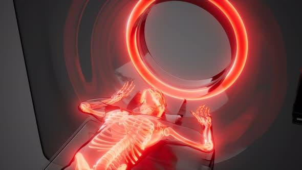 Thumbnail for MRI Examination