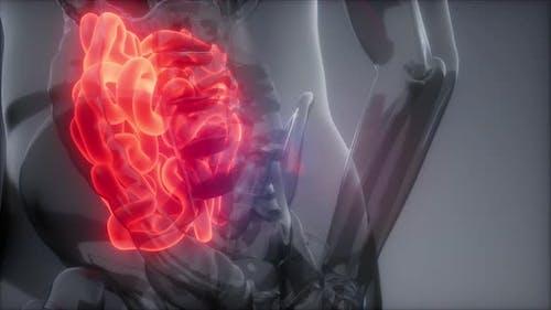 Human Small Intestine Radiology Exam