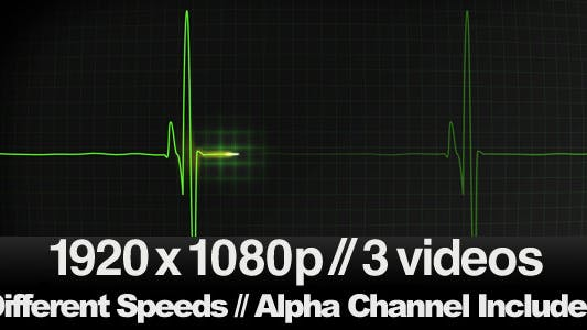 Thumbnail for 3 EKG Heartbeat Display Monitor Videos
