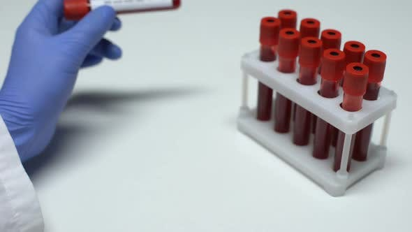Thumbnail for Positive HIV Viral Load Test, Doctor Showing Blood Sample in Tube, Lab Research