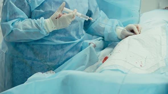 Coronary Artery Bypass Operation