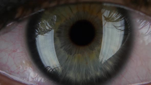Thumbnail for Human Pupil Widens and Narrows, with Opening and Closing the Lid. Macro