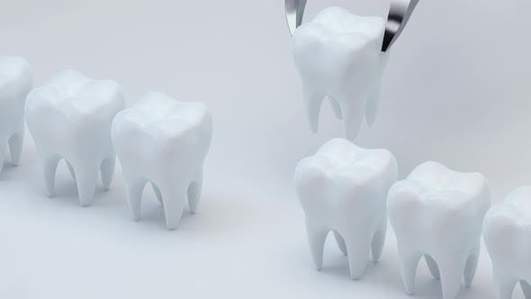 Animation of install the new tooth.