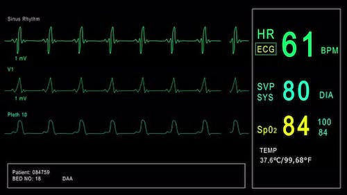 Looped: Patient Monitor Displays Vital Signs ECG Electrocardiogram EKG, Oxygen Saturation SPO2 and