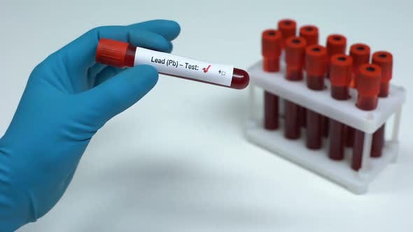 Thumbnail for Negative Lead Pb Test, Doctor Showing Blood Sample, Lab Research, Healthcare
