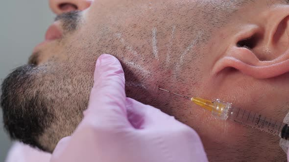 Thumbnail for Cosmetic Injections for Men