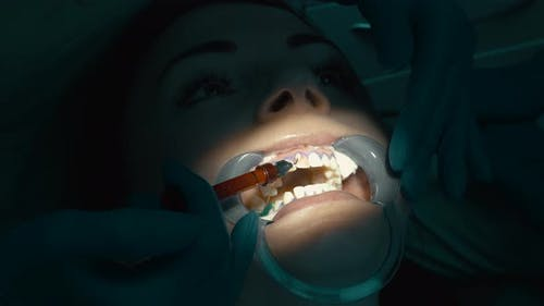 Application of Bleaching Gel for Procedure of Teeth Whitening