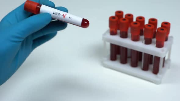 Thumbnail for Negative G6PD Test, Doctor Showing Blood Sample, Lab Research, Health Check-Up