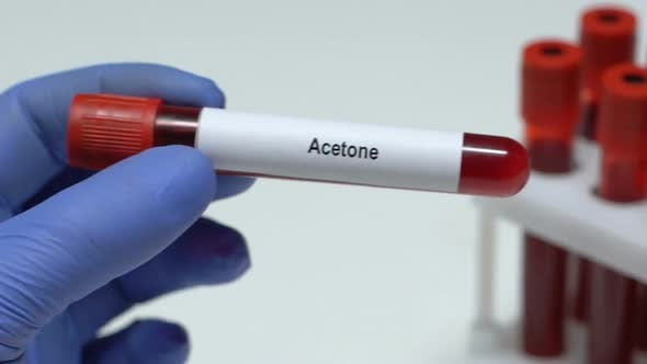 Thumbnail for Acetone Lab Worker Holding Blood Sample in Tube