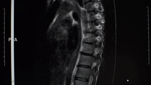 Magnetic Resonance Imaging of the Spine of a Man