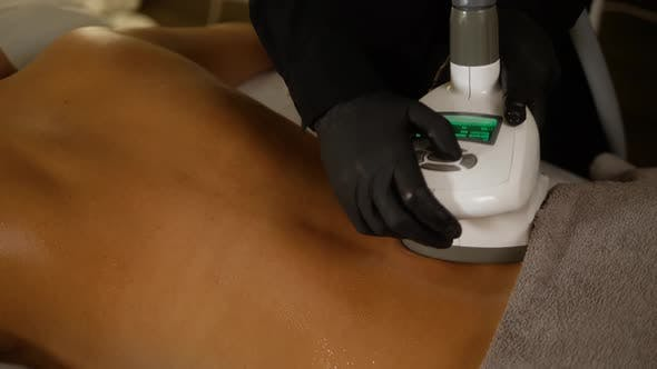 Cover Image for Cosmetologist Makes a Woman Lpg Massage on the Back. Spa Aesthetics Medical Treatment Back Close-up