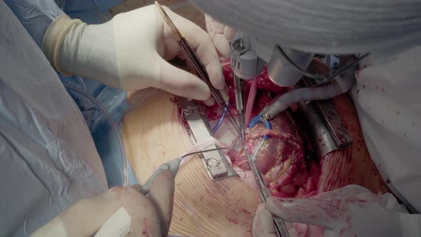 Thumbnail for Medical Staff of the Operating Unit Do Heart Surgery. Shunt Installation