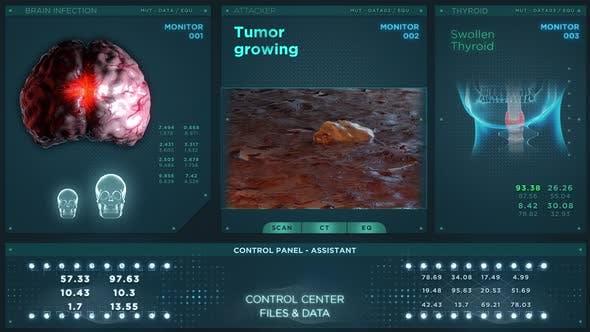 Tumor Growing Medical HUD