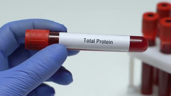 Thumbnail for Total Protein, Doctor Holding Blood Sample in Tube Close-Up, Health Check-Up