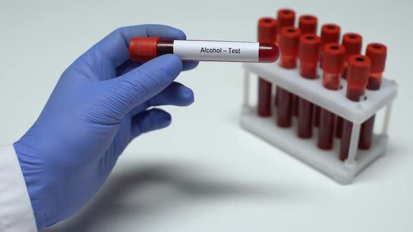 Thumbnail for Alcohol Test, Doctor Showing Blood Sample in Tube, Lab Research, Health Checkup