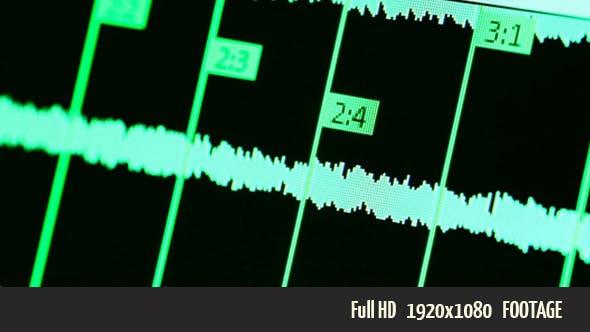 Digital Screen 1