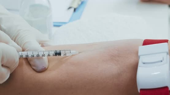 Thumbnail for Close Up Shot of Doctor Injecting Syringe Into Patient Vein and Inputing Medicine, Close Up