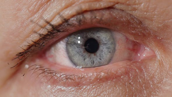 Thumbnail for Blue Eyes Of A Middle-Aged Woman
