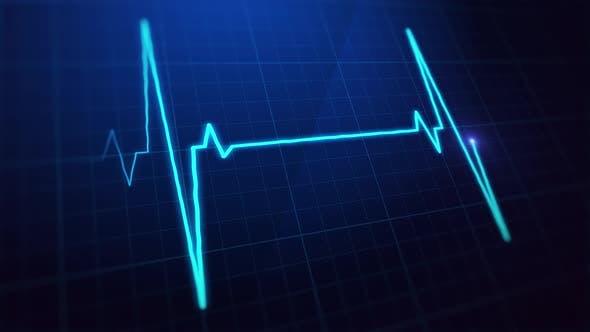 Thumbnail for EKG Pulsschirmschleife