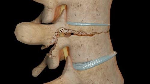 Flexion Distraction Fracture Of The Vertebra