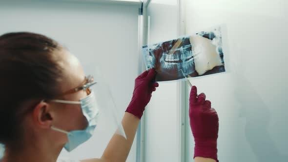 Doctor Examining Panoramic Computed Tomography and Xray of Human Teeth