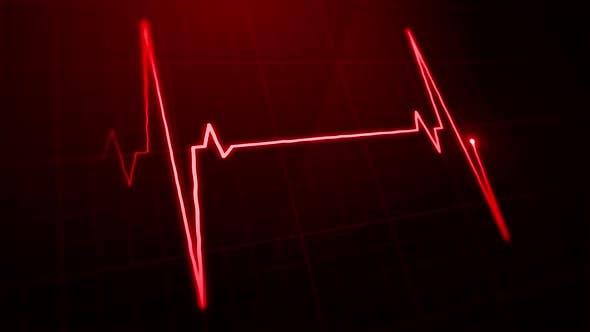 Thumbnail for EKG Pulse Screen