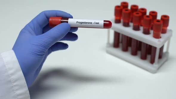 Thumbnail for Progesterone, Doctor Showing Blood Sample in Tube, Lab Research, Health Checkup