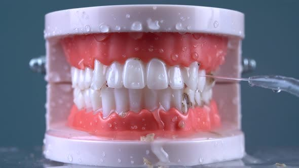 Thumbnail for Teeth Cleaning Water Pressure 05