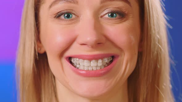 Thumbnail for Woman with blue eyes and braces on her teeth smiles