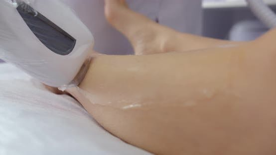 Laser Hair Removal Of Legs With The Help Of A Special Device. Beauty Salon. Beautician