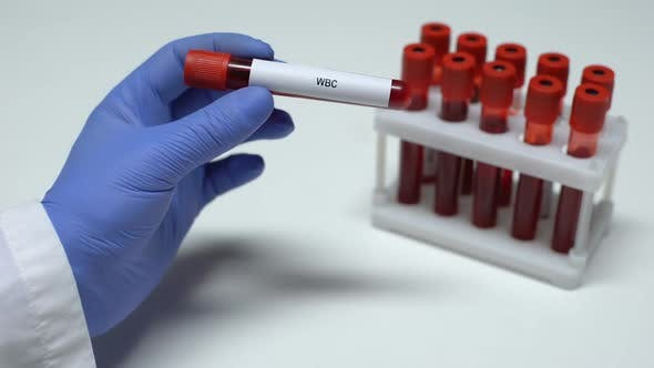 Thumbnail for WBC Leukocytes, Doctor Shows Blood Sample in Tube, Lab Research, Health Checkup