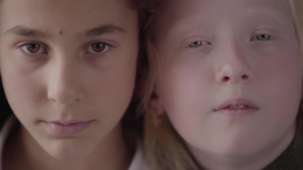 Thumbnail for Close Up Portrait of Brunette Girl with Brown Eyes and Albino Girl with Grey Eyes