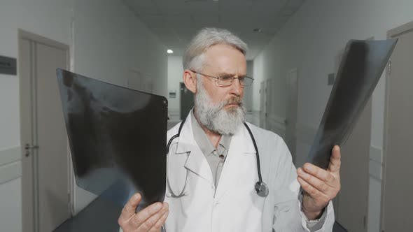Cheerful Senior Male Doctor Smiling To the Camera While Comparing Two X-ray Scans