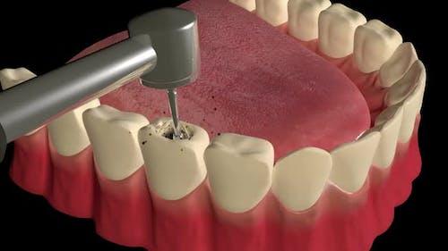 Tooth Cavity Filling Procedure