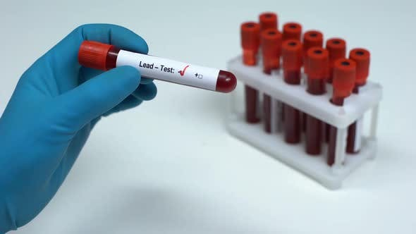 Thumbnail for Negative Lead Test Doctor Showing Blood Sample, Lab Research, Health Check-Up