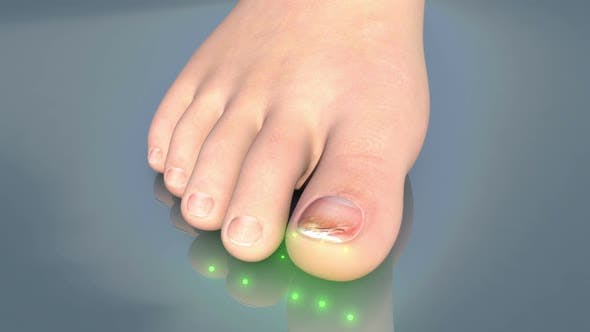 Onychomycosis Of The Toenail