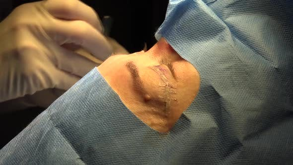 Thumbnail for Eyelid Surgery or Blepharoplasty 3