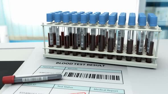 Lungenröntgen nach Bluttest zur Diagnose
