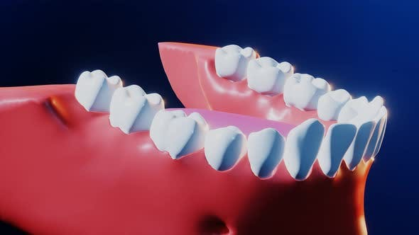 Tooth Medical Dental Implant Process