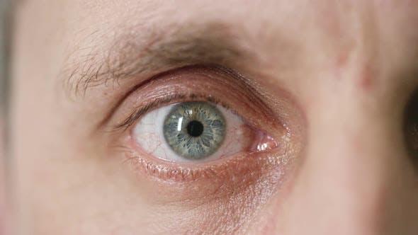 Mid Adult Man at Eye Examination