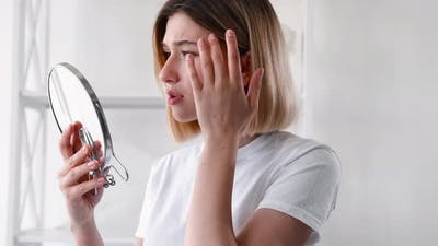 Acne Treatment Skin Problem Disturbed Girl Face