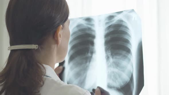 Thumbnail for Caucasian Doctor Examining Lungs X-ray. Shooting Over Shoulder of Serious Professional Looking at