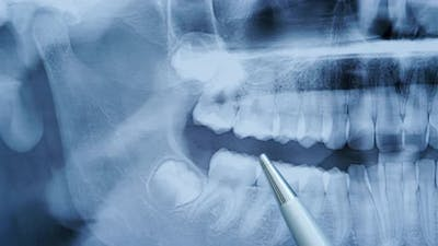 Dentist Examines a Panoramic Xray of the Teeth Shows the Problem Teeth on the Xray of the Teeth