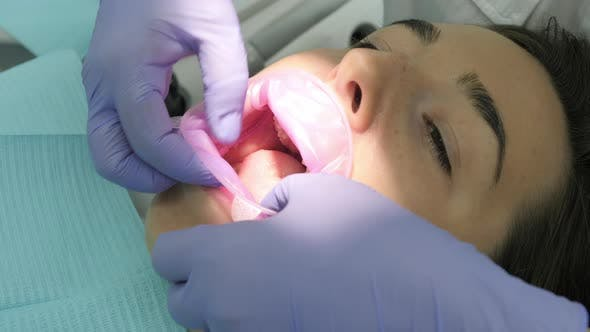 Close up of a patient at dentist