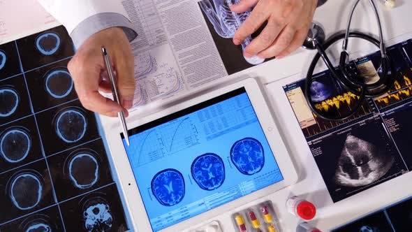 Thumbnail for Medical Test Analysis