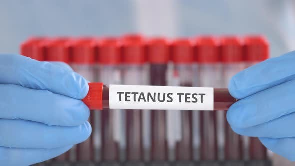 Lab Assistant Holds Laboratory Tube with Tetanus Test